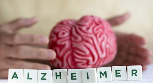How Alzheimer's Affects the Brain's Memory Systems in Tucson, AZ