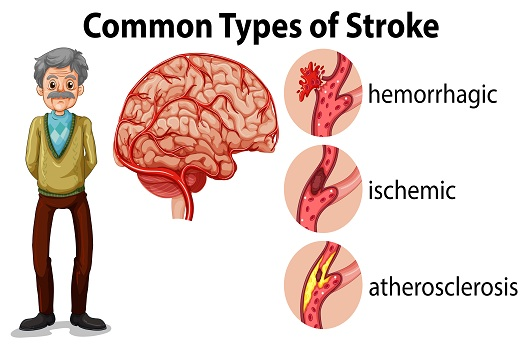 What Are the Types of Strokes in Tucson, AZ